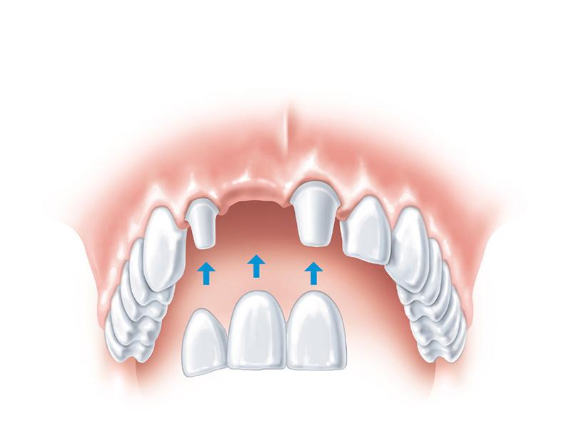 Имплантация зубов в набережных челнах цены